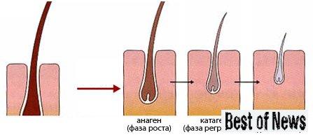 При раке поджелуд железы выпадают волосы какая стадия