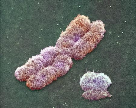Мужская сексуальность определяется женскими хромосомами
