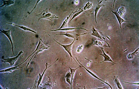 Стволовые клетки помогают при пересадке органов
