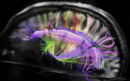 Построена трёхмерная карта проводящих путей мозга