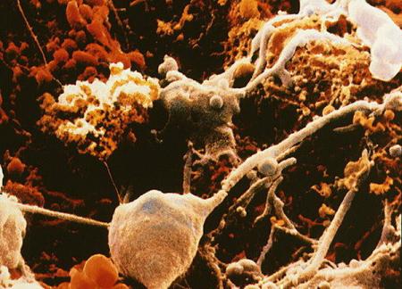 Как опиоиды вызывают нервное воспаление