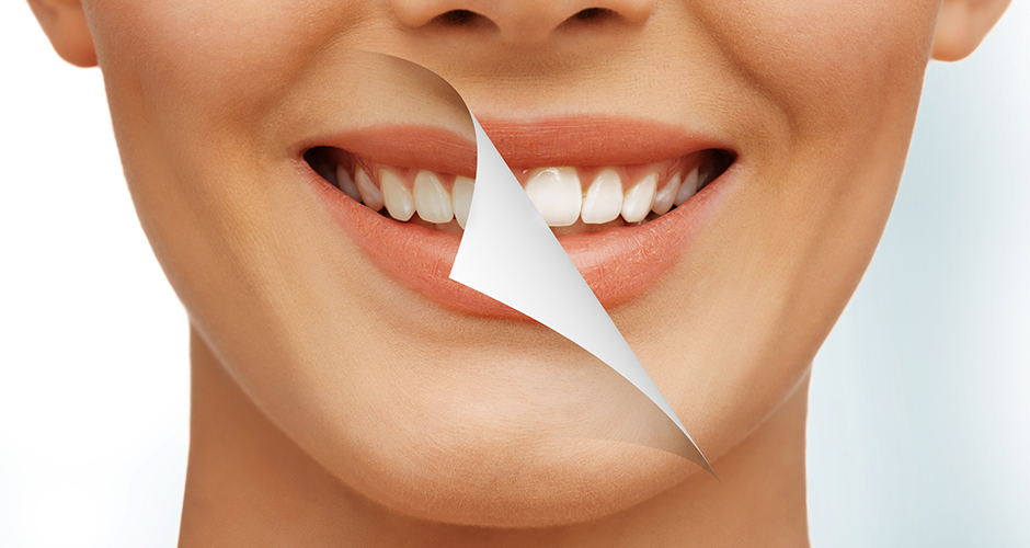 Как делается ультразвуковая чистка зубов