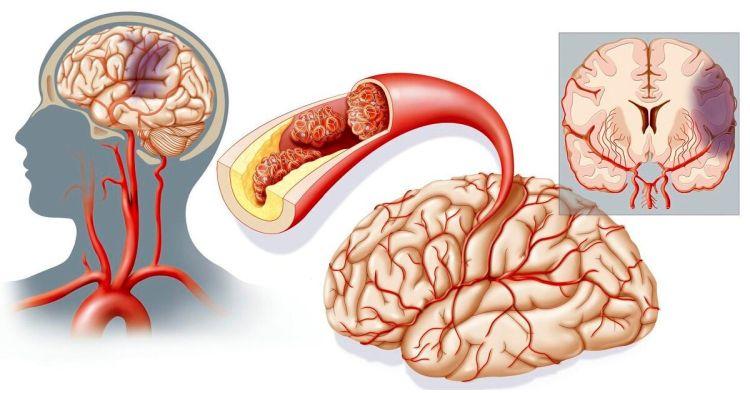 симптомы ишемического инсульта